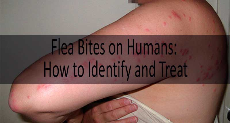 how to treat flea bites: photo
