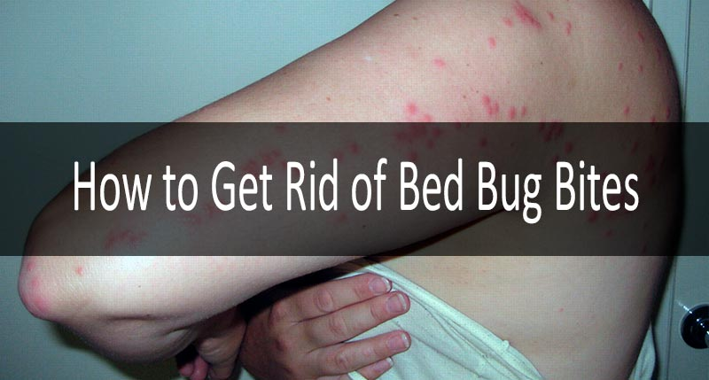 Bed Bug Bites 8 Definite Symptoms And Signs And Their
