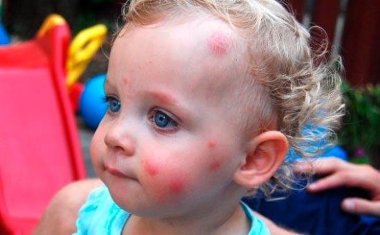 Укусы клопов у ребенка: фото
