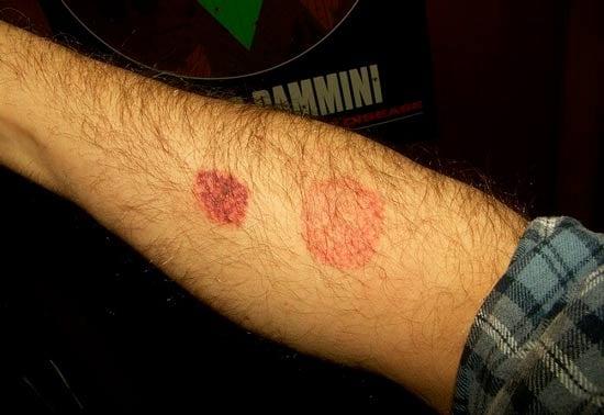 Аллергия на укусы клопов: фото